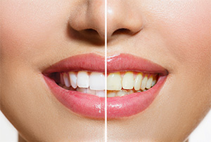 Pleasant Hill Cosmetic Dentist | teeth whitening, Opalescence | Diablo Valley Dentistry